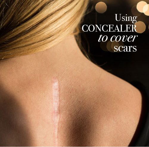 How-to guide on using concealer to cover a scar