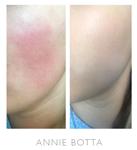 Annie Botta